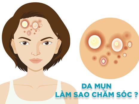 Các bước chăm sóc da mụn hàng ngày – Giúp cải thiện làn da sạch mụn
