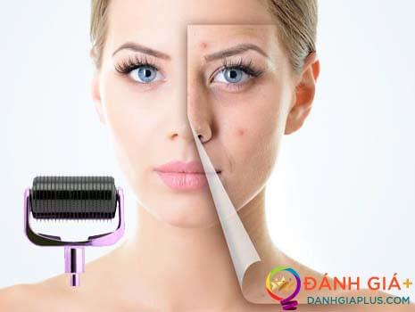 Cách chăm sóc da mặt sau khi lăn kim an toàn và hiệu quả nhất