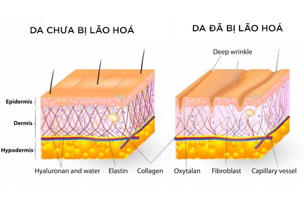 Dấu hiệu của việc da bị lão hoá